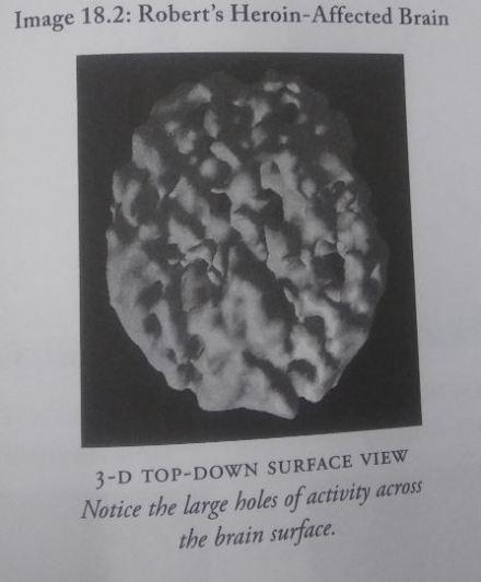 heroin-brain