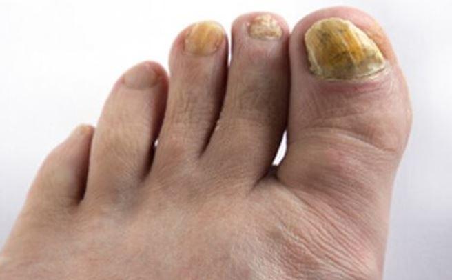 feet fungus